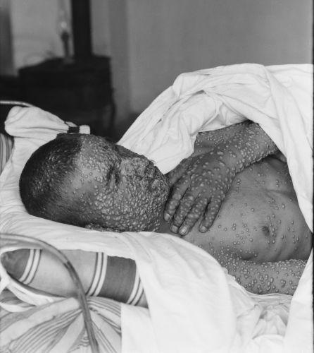A varíola foi uma das doenças que mais matou seres humanos ao longo da história, causando epidemias e pandemias em diferentes locais.