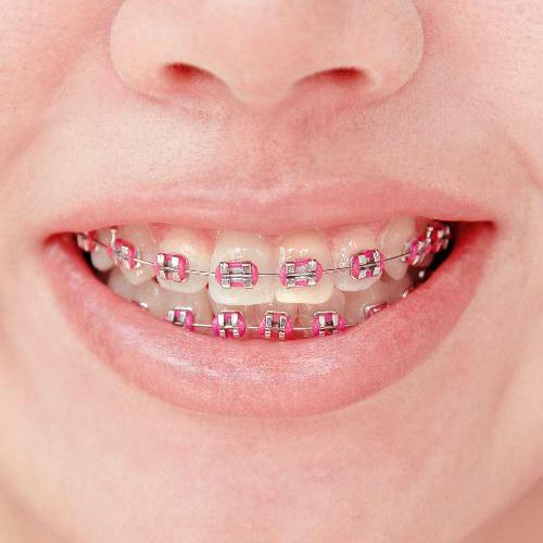 A correção dentária contou com diversas técnicas ao longo dos séculos